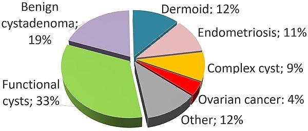 Ovarian Cyst Wikiwand