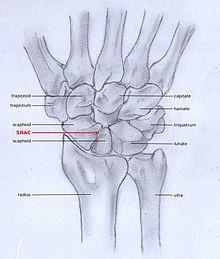 scaphoid arthrosis scaphoid kezelése