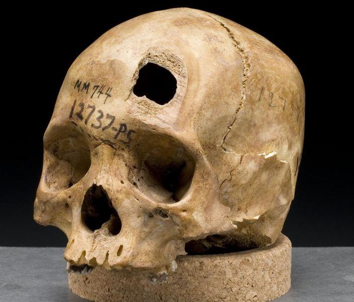File:Skull sword trauma.jpg