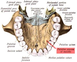 Palatine process of maxilla - Inferior surface of maxilla. The bony palate and alveolar arch. (Palatine process labeled at bottom right.)