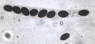 Ascospore - Sordaria fimicola ascus plus ascospore