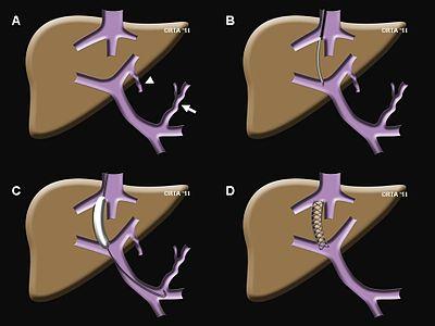 Hipertension portal circulacion colateral