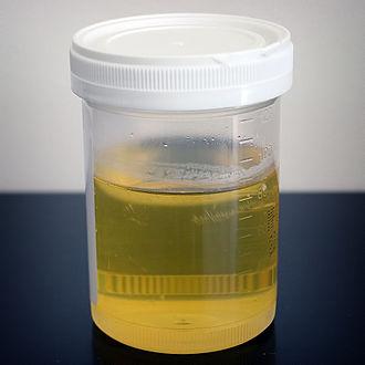 Urine therapy - A sample of human urine