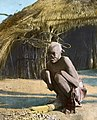 """A mutilated victim of Wemba savagery, Livingstonia"", ca.1910 (imp-cswc-GB-237-CSWC47-LS4-1-020) (cropped).jpg"