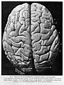 Adult male brain - natural size Wellcome L0001030EA.jpg