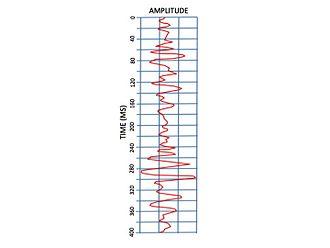 Linear seismic inversion - Figure 8:Amplitude Log