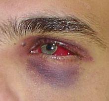 Bruise Wikipedia