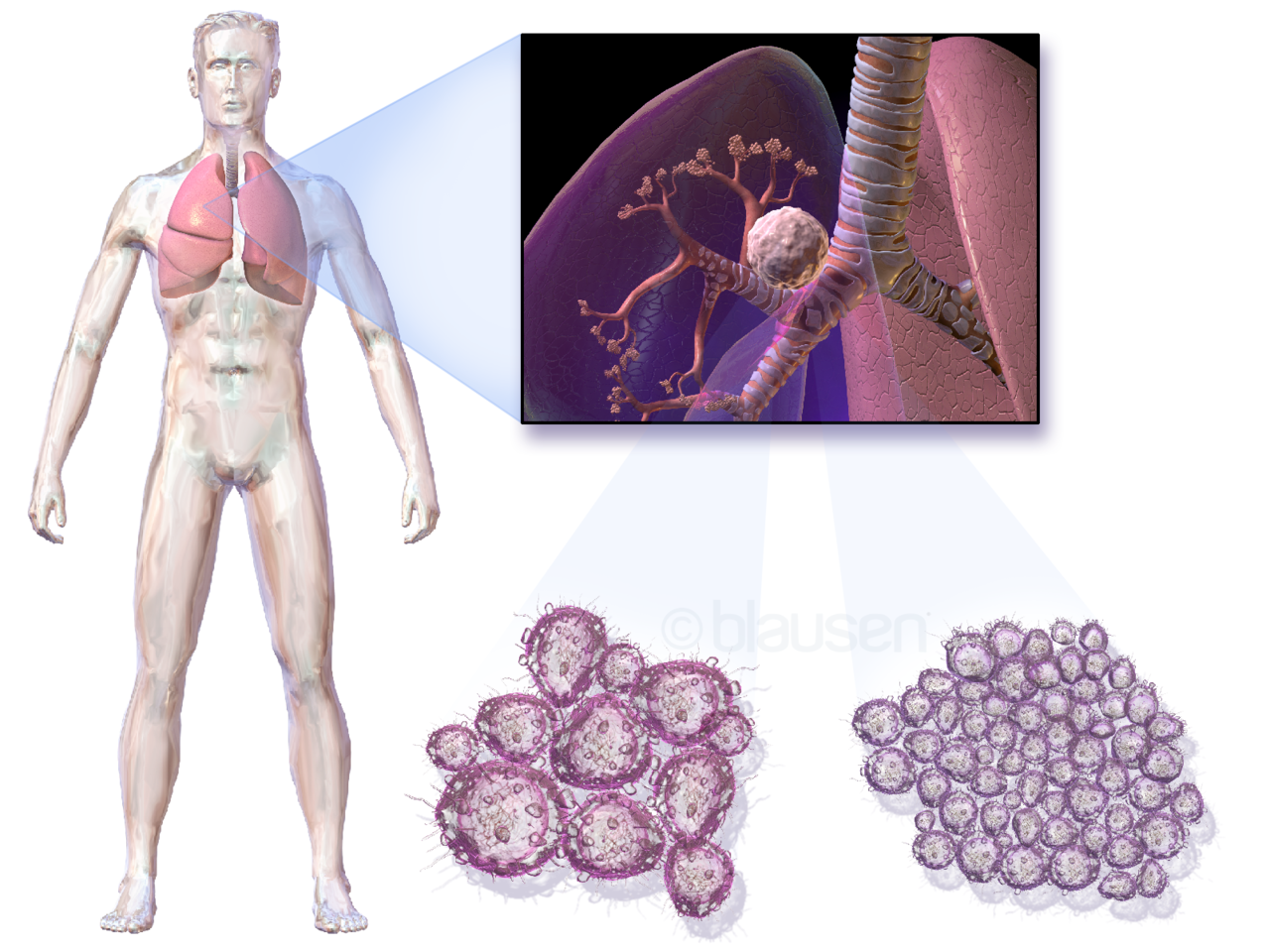 an image of Lung%20Cancer Original