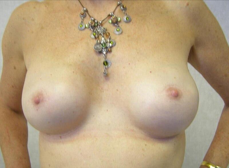 Datei:Breast reconstruction 15.jpg