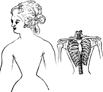 Corset1908 025Fig7.png