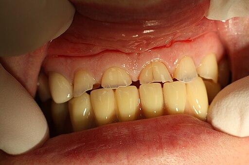 Dental abrasion 20100113 005