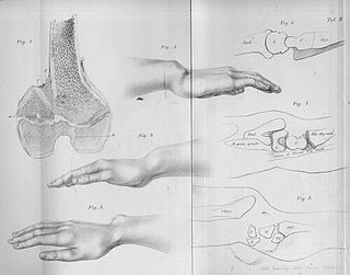 Madelungs deformity Madelung disease, or deformity (MD) is a predominantly bilateral wrist anomaly characterized by shortened and bowed radii and long ulnae leading to dorsal dislocation of the distal ulna and limited mobility of the wrist and elbow