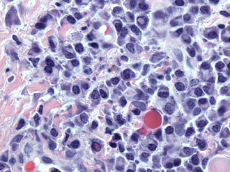 Plasma cell - Image: Dutcher and Russell bodies