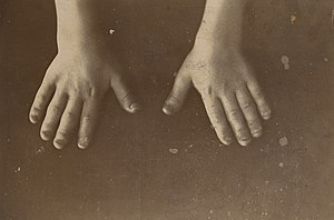 Hands of a girl with achondroplasia Wellcome L0062546.jpg