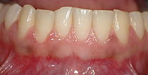 Healthy gingiva.jpg