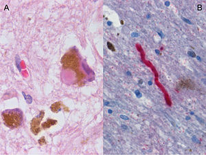 Parkinson's Disease Stopped in Animal Model