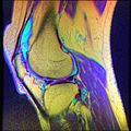 Knee MRI, T1T2PD 07.jpg