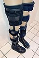 Ortho leg braces - adolescent female patient 2.jpg