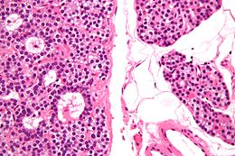Parathyroid adenoma high mag.jpg