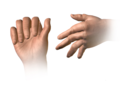 Rheumatoid Arthritis (Swan Neck Deformity) esp.png