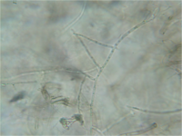 Rhizoctonia hyphae 160X.png