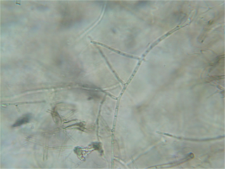 R. solani hyphae showing the distinguishing right angles