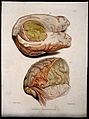 Two sections of diseased brain. Coloured stipple etching by Wellcome V0009772.jpg