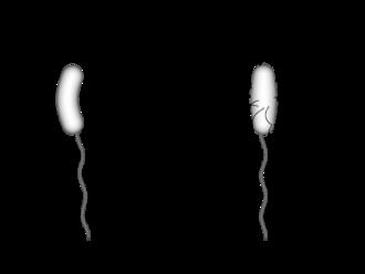 Vibrio cholerae - Image: Vibrio diagram
