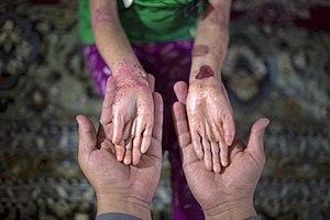 بیماری پروانه ای یا بیماری ای بی در کودکان مناطق محروم جنوب کرمان- ایران 08.jpg