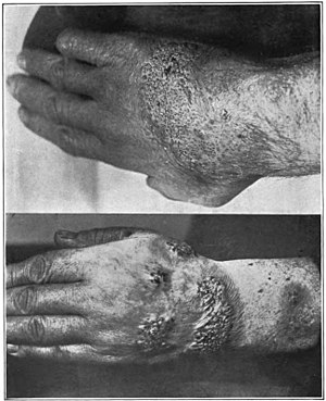 An introduction to dermatology (1905) blastomycosis.jpg
