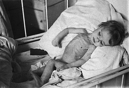 Malnourished Dutch child in Hague BC856 HUI-2004.jpg