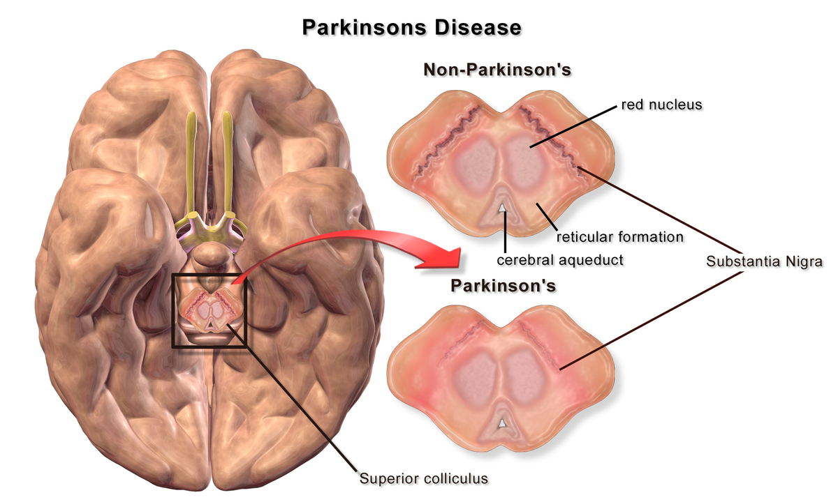 Pathophysiology of Parkinson\'s disease - Wikipedia
