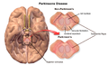 Blausen 0704 ParkinsonsDisease.png