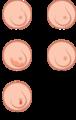Breast cancer illustration es.png