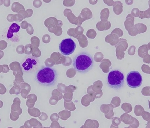 Carcinocythemia - malignant tumour cells in peripheral blood (cropped v1).png