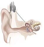 الهندسة البيوطبية 150px-Cochlear_implant.jpg