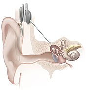 یک سیستم شنوایی مصنوعی جاسازی شده