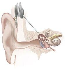 Ear Problems Balance Problems In Delray Beach Fl