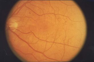 Retinopathy - Retinopathy in fundus of eye