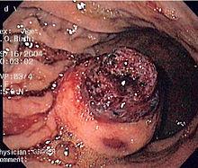 Image Result For Cancer De Colon