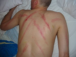 Gua Sha as practiced in Bali, Indonesia