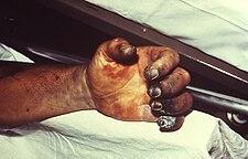 nekróza ruky při moru