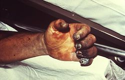 Hand necrosis caused by plague.jpg