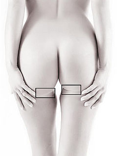 Gluteal sulcus