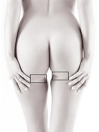 Gluteal sulcus - Image: Horizontal gluteal crease