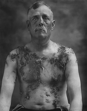 Tarring and feathering - Image: John Meintz, punished during World War I NARA 283633 restored