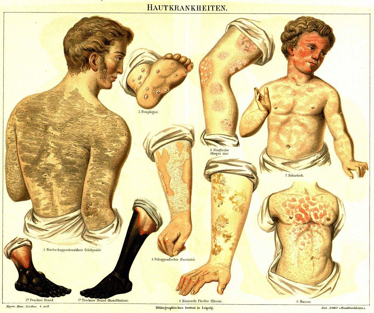 Ichthyosis vulgaris - Wikipedia