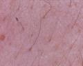 Microscopio - Piel de rostro.png