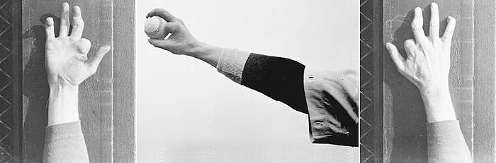 "Brown's pitching (or ""twirling"") hand Mordecai Brown 3 fingers.JPG"