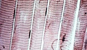 Muscle tissue - Striated skeletal muscle cells in microscopic view.  The myofibers are the straight vertical bands; the horizontal striations (lighter and darker bands) that are visible result from differences in composition and density along the fibrils within the cells.  The cigar-like dark patches beside the myofibers are muscle-cell nuclei.